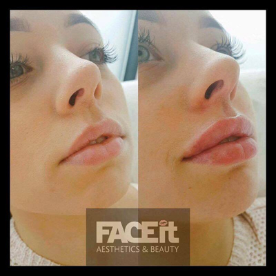 Dermal Lip Filler Before and After at Belle Vie - Home of